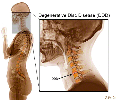 recovering-from-herniated-cervical-disc-and-spine-disease-keep-your-back-in-good-shape